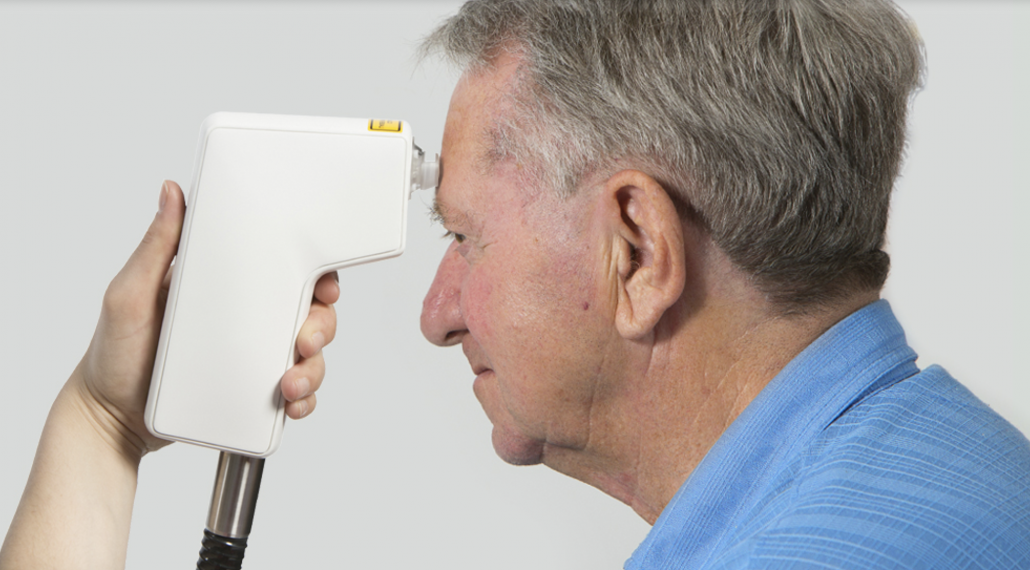 Patient having Atopic Dermatitis scanned with VivoSight OCT