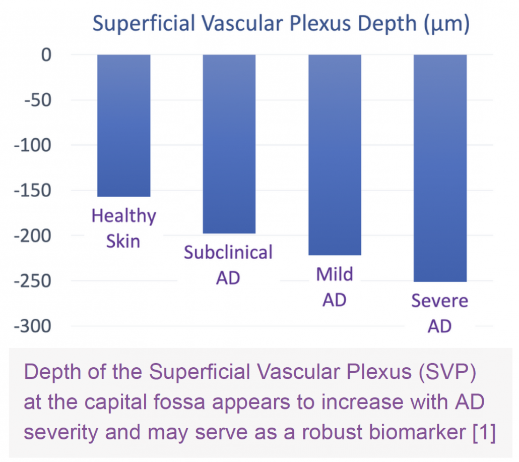 Depth of the Superficial Vascular Plexus (SVP) at the capital fossa appears to increase with AD severity and may serve as a robust biomarker. VivoSight OCT Atopic Dermatitis