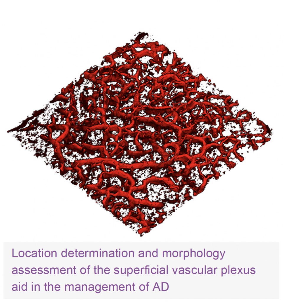 Location determination and morphology assessment of the superficial vascular plexus aid in the management of AD