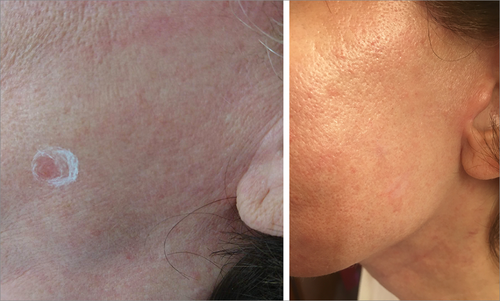 Fig. 5: (Left) 0.7 mm deep superficial BCC on left cheek before scanning Nd:YAG laser treatment. (Right) 6 month after single laser treatment. Clearance per OCT.